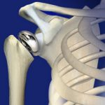 Total shoulder joint replacement surgery